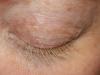 eyelashdyebefore1