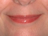 dolores_lips_healed
