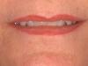 pamlarson_lips_healed