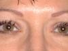 chrisomalley_eyes_healed
