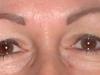 dolores_eyes_healed
