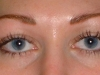 eyes_immed_after