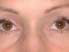 marsha_eyes_healed