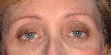 gaylemcnamara_eyes_healed