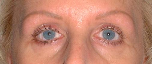 misc1_eyes_healed