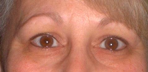 pamlarson_eyes_healed