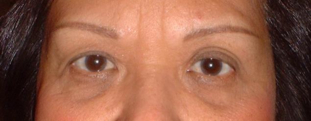 roseindiana_eyes_healed