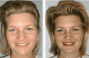 Permanent Cosmetic Makeup, Scar and Wrinkle Fading, Chicago ...